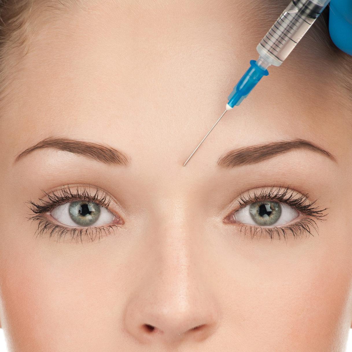 Remodelare facială